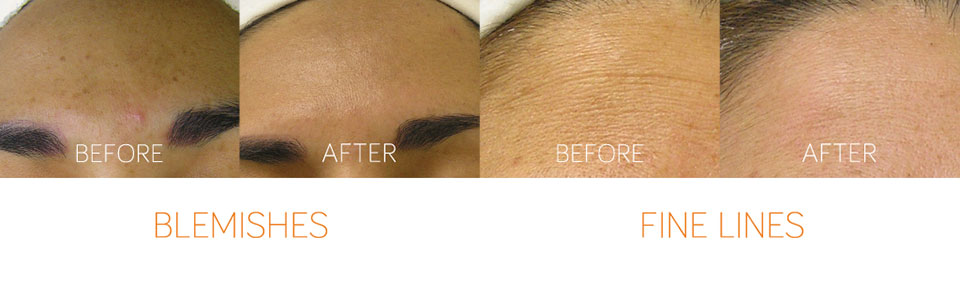 Hyrdrafcial Treatments to remove blemishes and fine lines