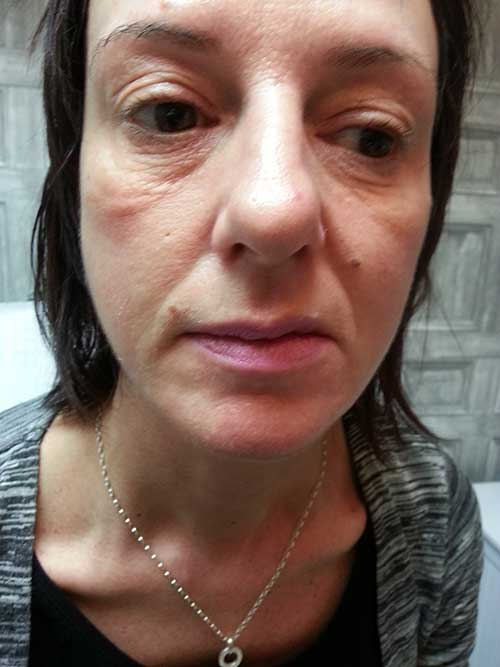 V Vectoring (Liquid Face Lift) Before Treatment
