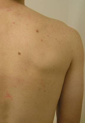 Back acne after Hyrdrafcial Treatments