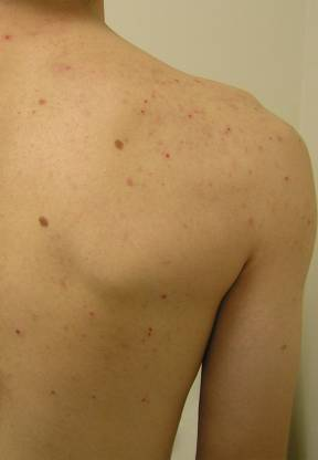 Back acne before Hyrdrafcial Treatments