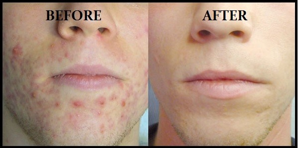 Plexr Plasma Soft Surgery Treatment Of Acne Excess