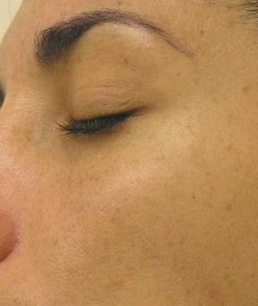 Hyperpigmentation after Hyrdrafcial Treatments