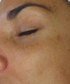 Hyperpigmentation before Hyrdrafcial Treatments