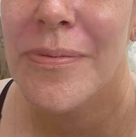 Nasolabial Folds After Treatment