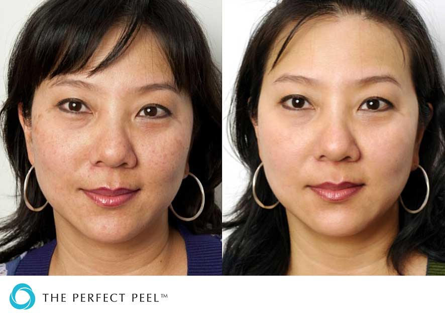 Question Facial peel reviews are right