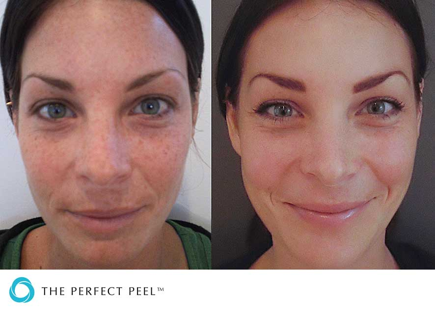 Skin Peel Treatments Facial Peels Peel Treatment For