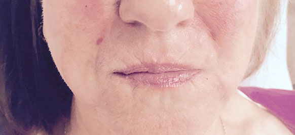 Nasolabial Folds Before Treatment