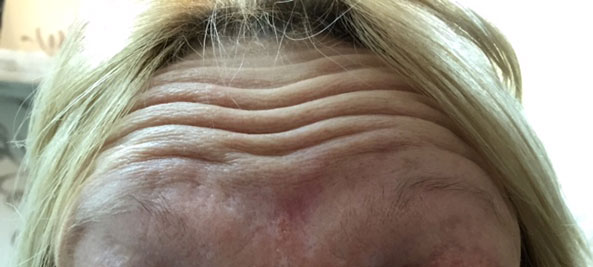 Botox Anti Wrinkle Injections Before Treatment