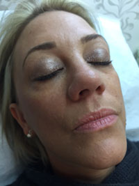 Mesotherapy After Treatment