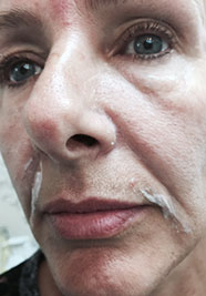 Mid Face Rejuvenation After Treatment