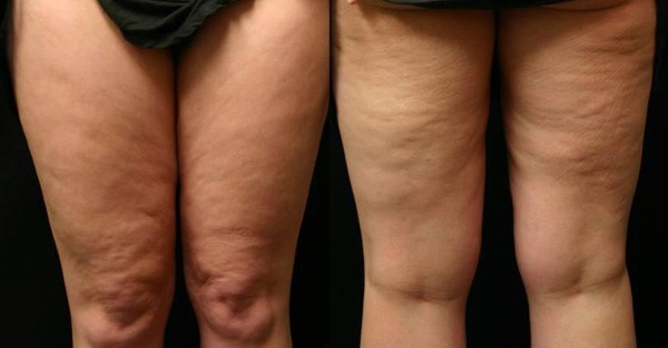 Cellulite Removal Treatments