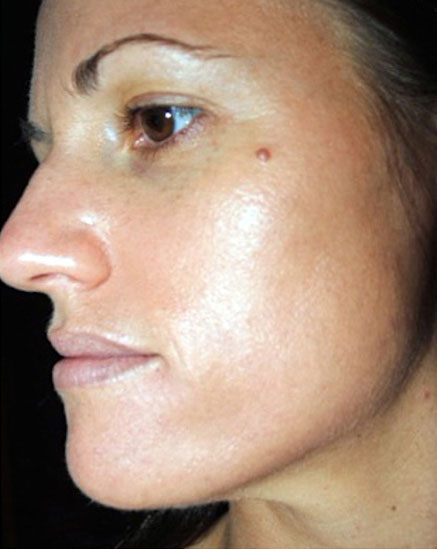 Facial Skin Peel After Treatment