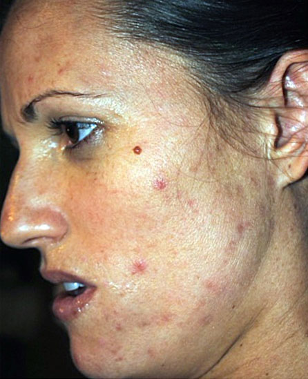 Facial Skin Peel Before Treatment