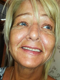Vampire Facelift After Treatment