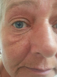 Vampire Facelift Before Treatment